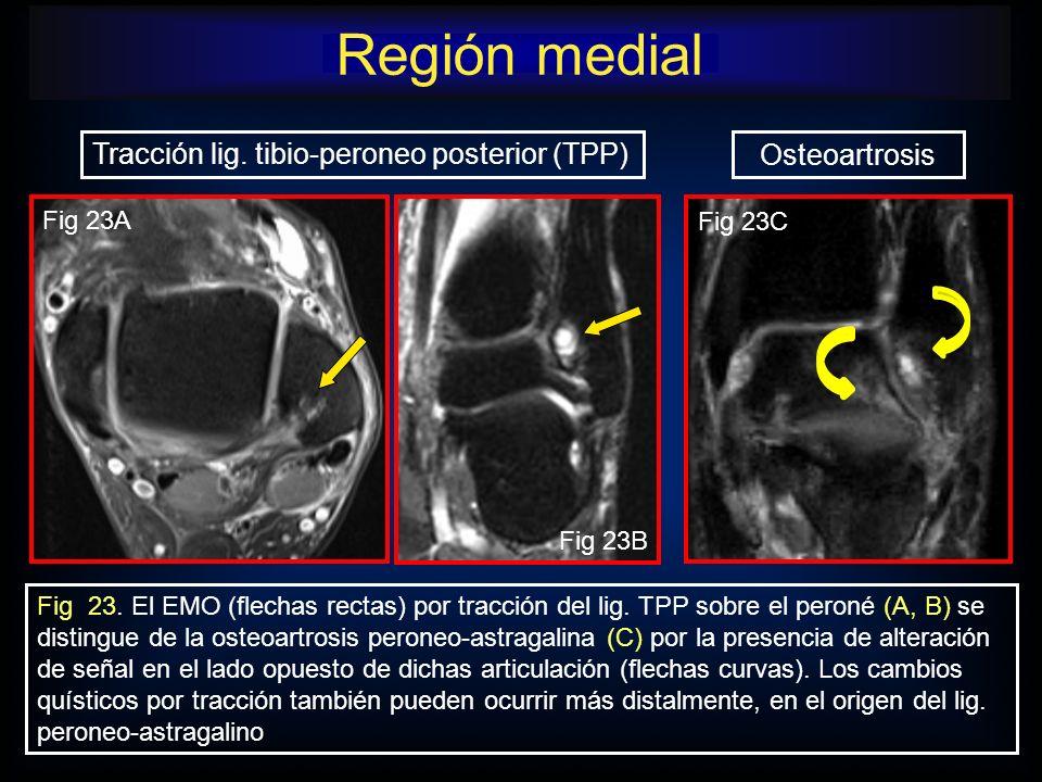 Región medial Tracción lig. tibio-peroneo posterior (TPP)