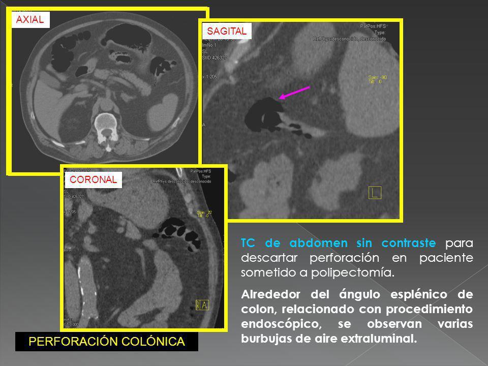 AXIALSAGITAL. CORONAL. TC de abdomen sin contraste para descartar perforación en paciente sometido a polipectomía.
