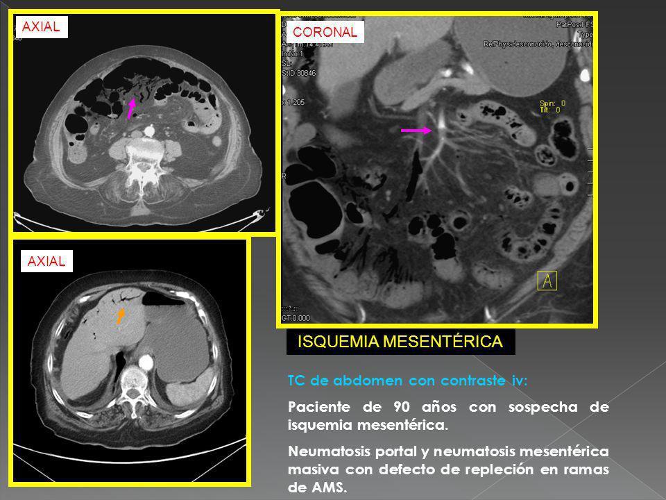 ISQUEMIA MESENTÉRICA TC de abdomen con contraste iv: