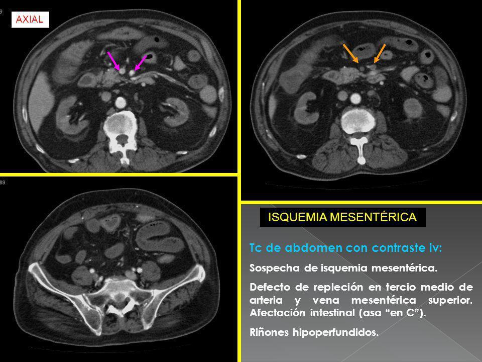 Tc de abdomen con contraste iv: