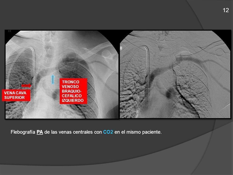 12 Flebografía PA de las venas centrales con CO2 en el mismo paciente.