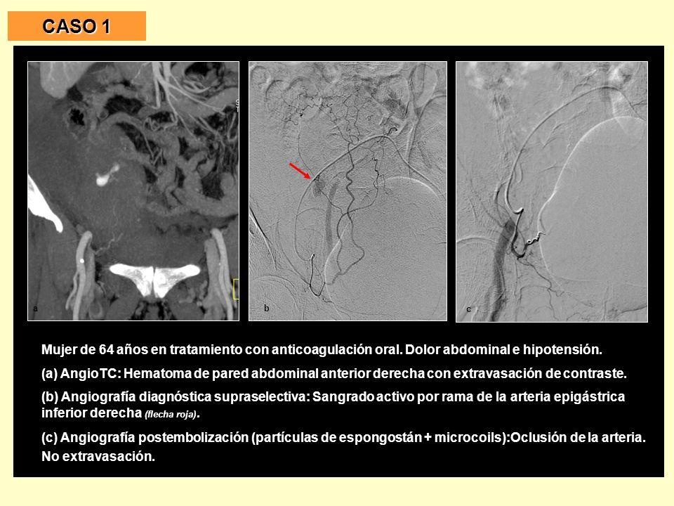 CASO 1 Mujer de 64 años en tratamiento con anticoagulación oral. Dolor abdominal e hipotensión.