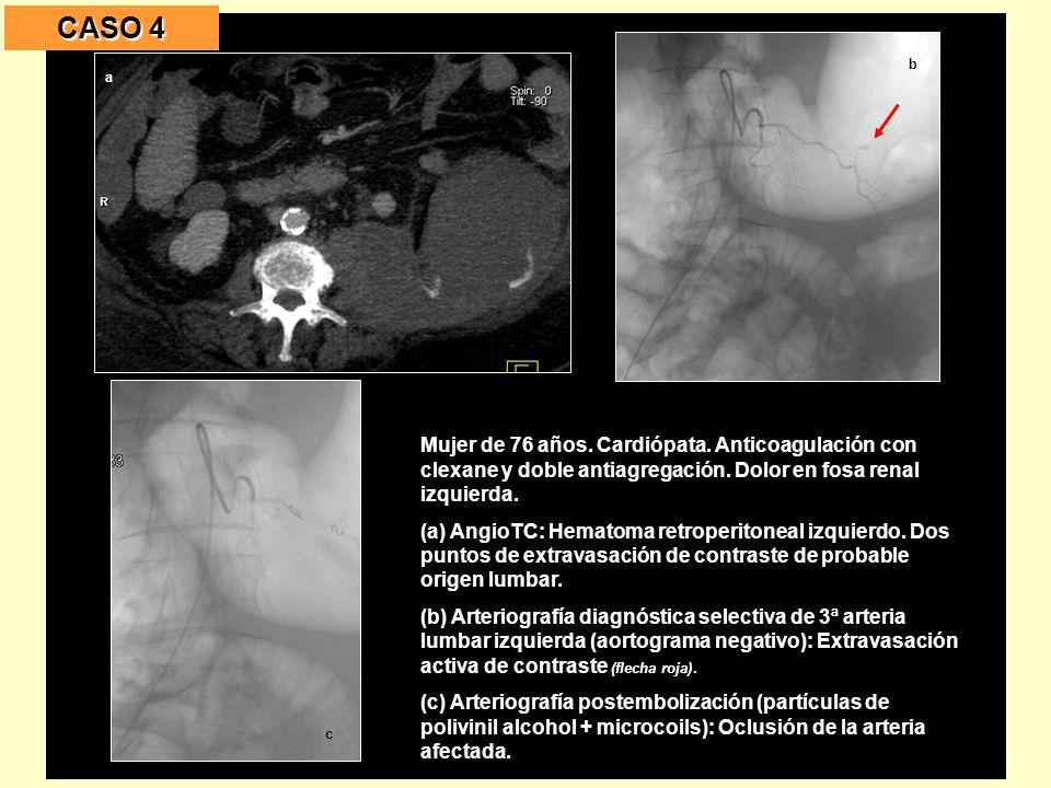 CASO 4 Mujer de 76 años. Cardiópata. Anticoagulación con clexane y doble antiagregación. Dolor en fosa renal izquierda.