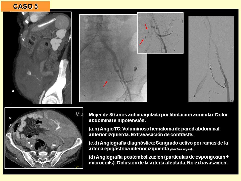CASO 5 a. c. e. d. b. Mujer de 80 años anticoagulada por fibrilación auricular. Dolor abdominal e hipotensión.