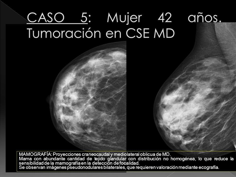 CASO 5: Mujer 42 años. Tumoración en CSE MD