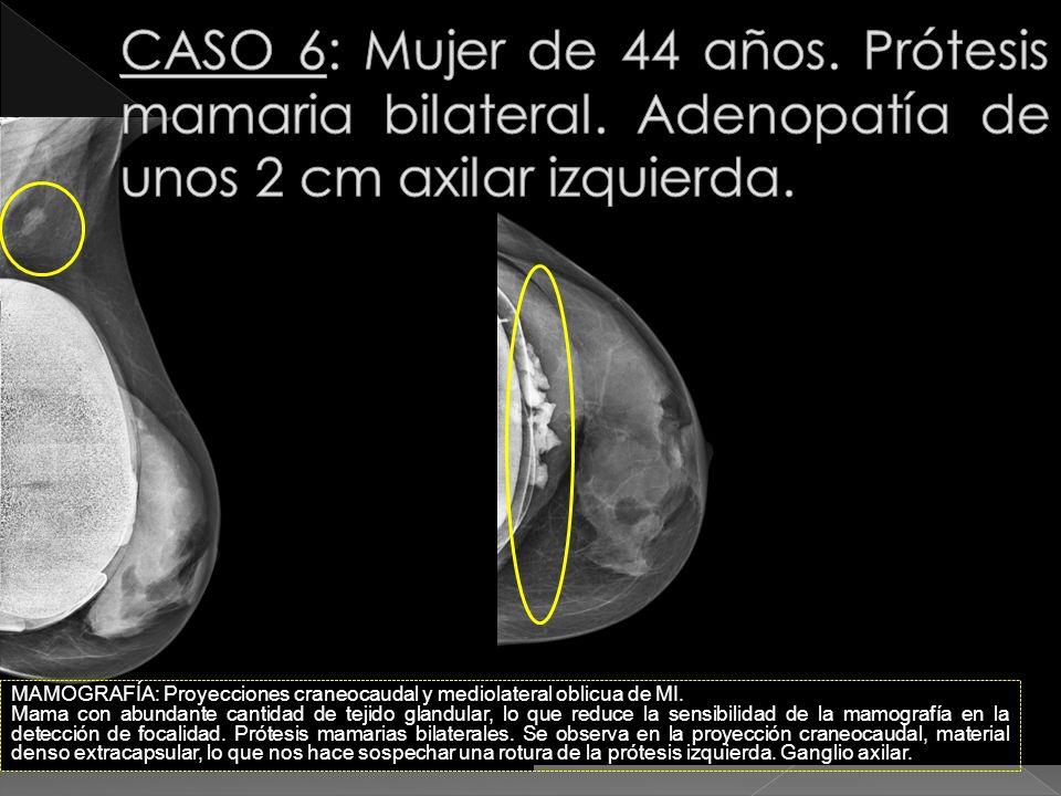 CASO 6: Mujer de 44 años. Prótesis mamaria bilateral