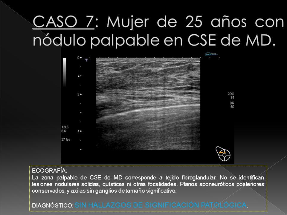 CASO 7: Mujer de 25 años con nódulo palpable en CSE de MD.