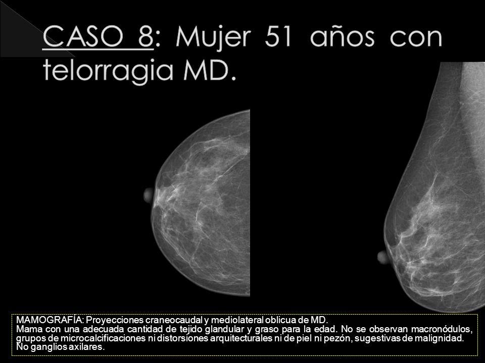 CASO 8: Mujer 51 años con telorragia MD.