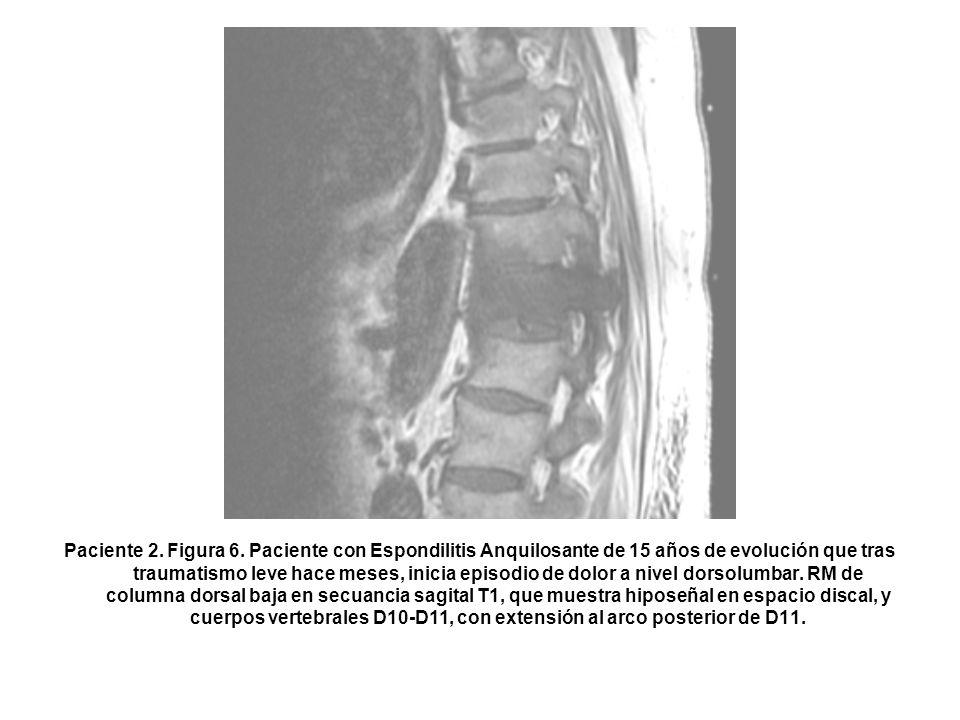 Paciente 2. Figura 6.