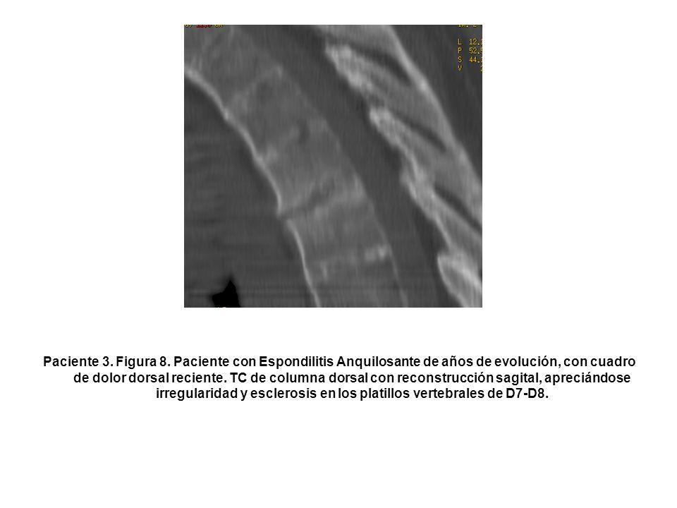 Paciente 3. Figura 8.
