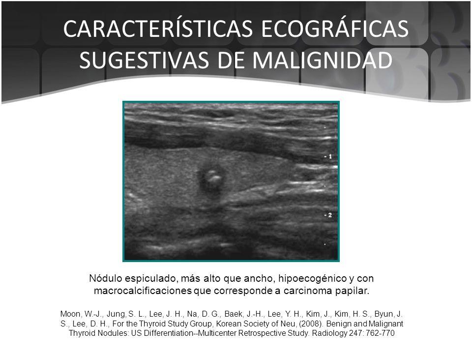 CARACTERÍSTICAS ECOGRÁFICAS SUGESTIVAS DE MALIGNIDAD