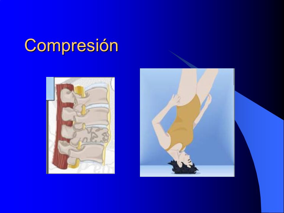 Compresión Estallido, aplastamiento