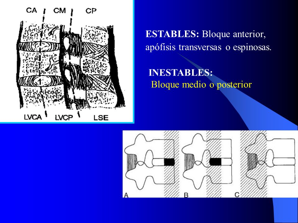 ESTABLES: Bloque anterior, apófisis transversas o espinosas.