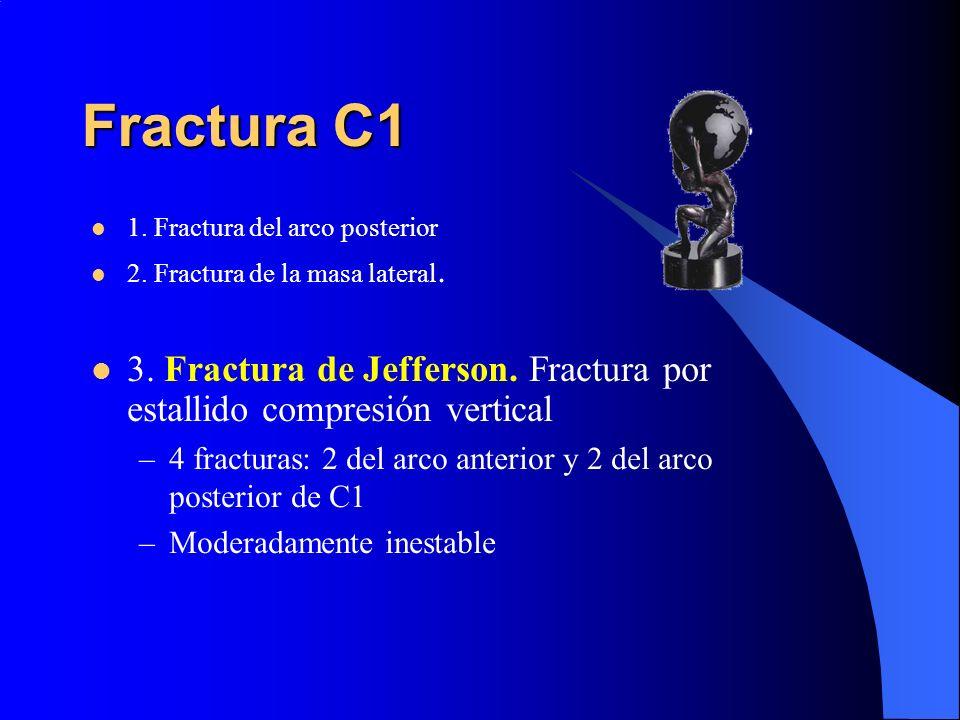 Fractura C11. Fractura del arco posterior. 2. Fractura de la masa lateral. 3. Fractura de Jefferson. Fractura por estallido compresión vertical.