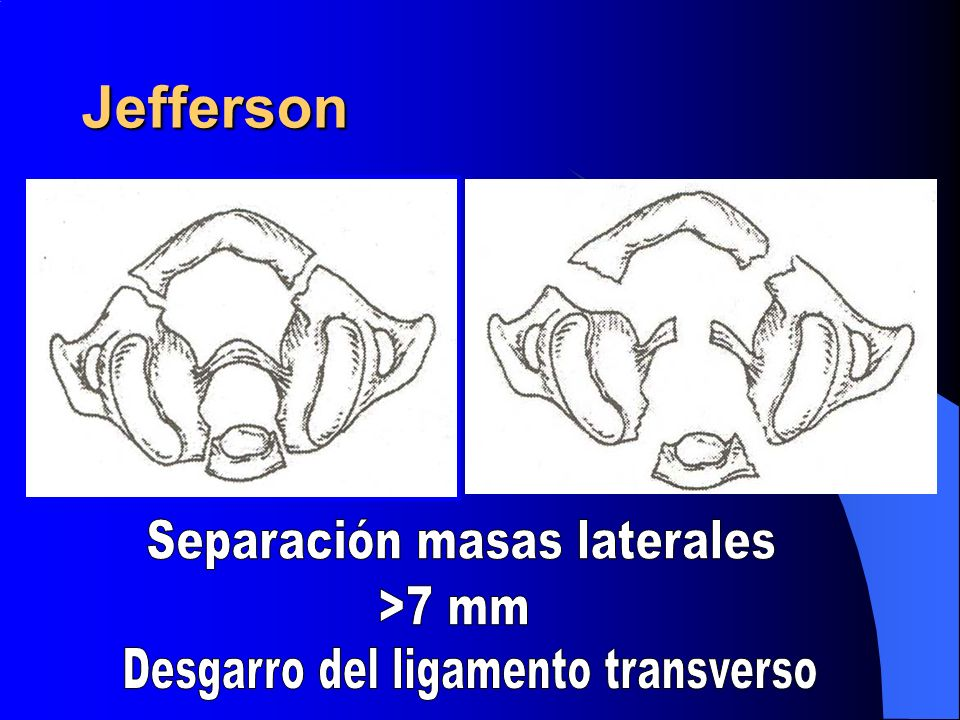 Jefferson Separación masas laterales >7 mm