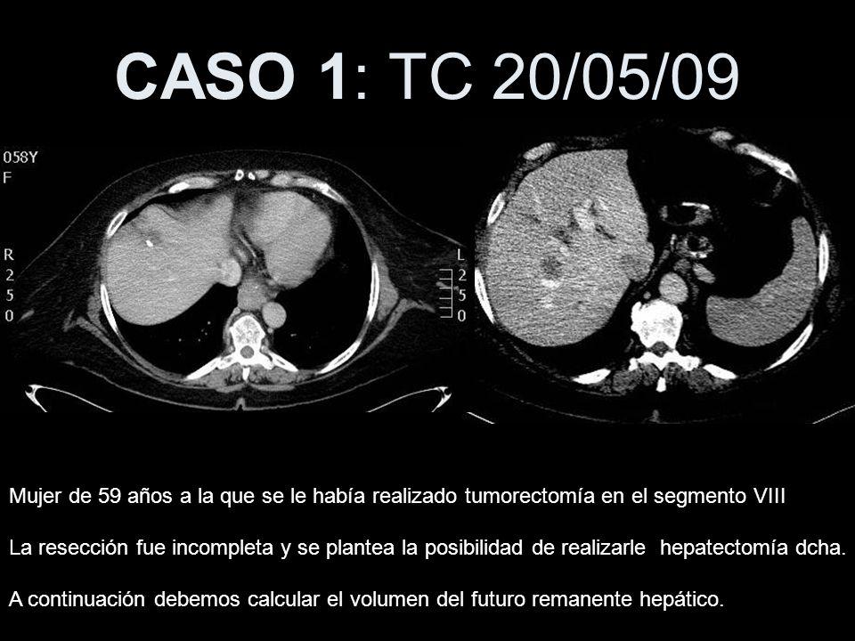 CASO 1: TC 20/05/09 Mujer de 59 años a la que se le había realizado tumorectomía en el segmento VIII.