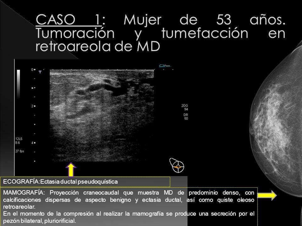 CASO 1: Mujer de 53 años. Tumoración y tumefacción en retroareola de MD