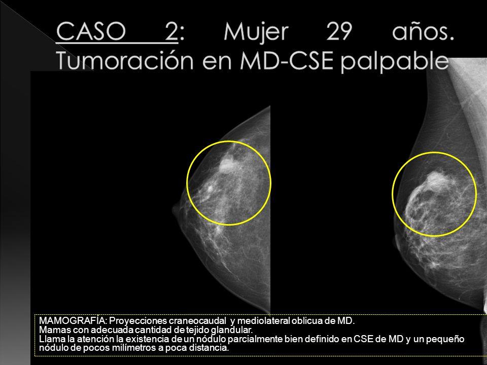 CASO 2: Mujer 29 años. Tumoración en MD-CSE palpable