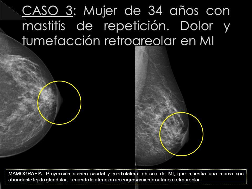 CASO 3: Mujer de 34 años con mastitis de repetición