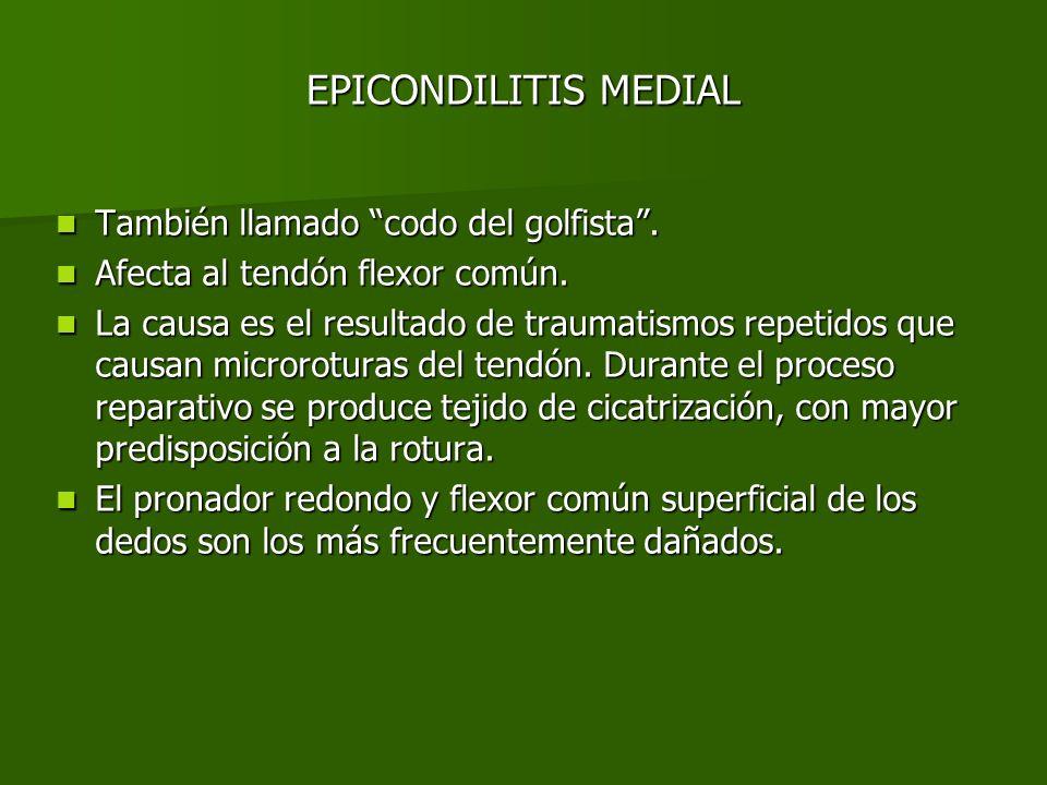 EPICONDILITIS MEDIAL También llamado codo del golfista .