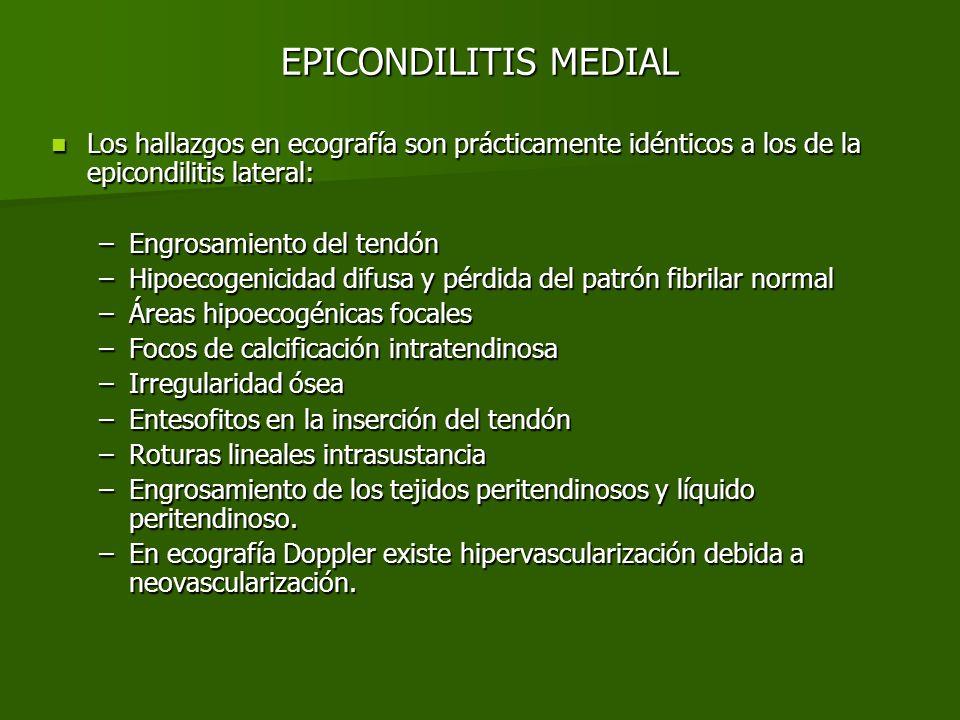 EPICONDILITIS MEDIALLos hallazgos en ecografía son prácticamente idénticos a los de la epicondilitis lateral: