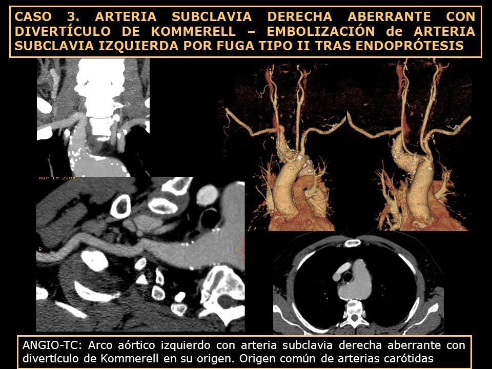 CASO 3. ARTERIA SUBCLAVIA DERECHA ABERRANTE CON DIVERTÍCULO DE KOMMERELL – EMBOLIZACIÓN de ARTERIA SUBCLAVIA IZQUIERDA POR FUGA TIPO II TRAS ENDOPRÓTESIS