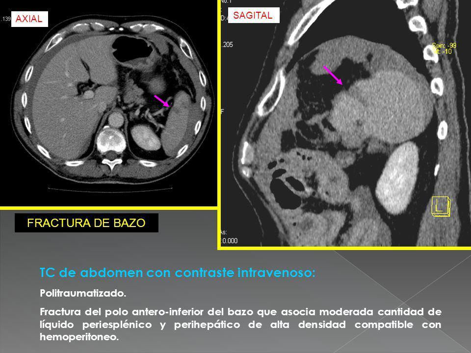 TC de abdomen con contraste intravenoso: