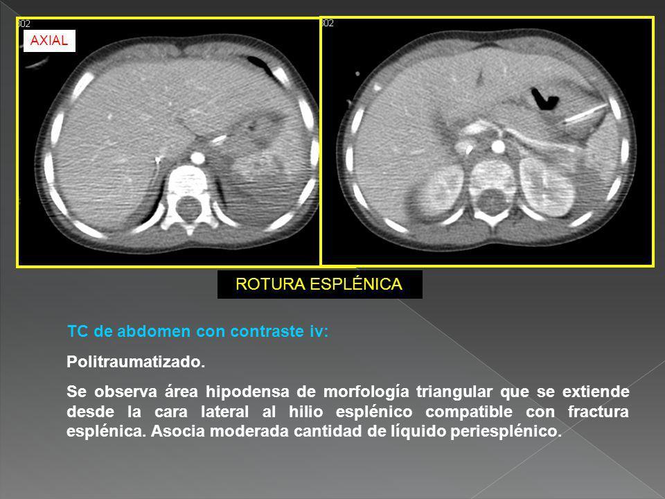 TC de abdomen con contraste iv: Politraumatizado.