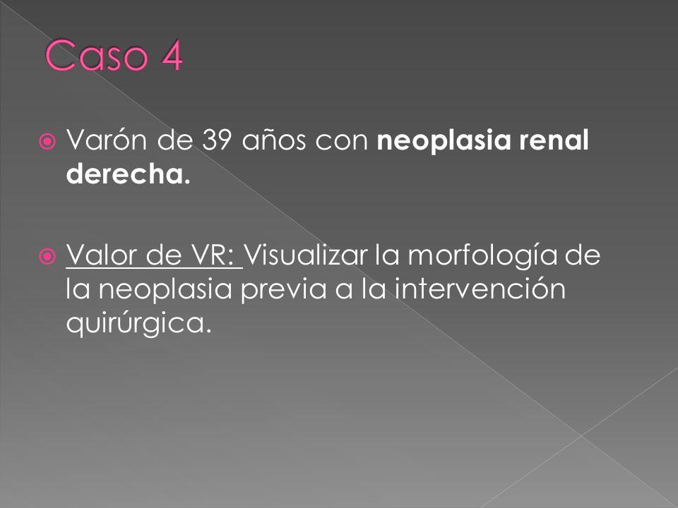 Caso 4 Varón de 39 años con neoplasia renal derecha.
