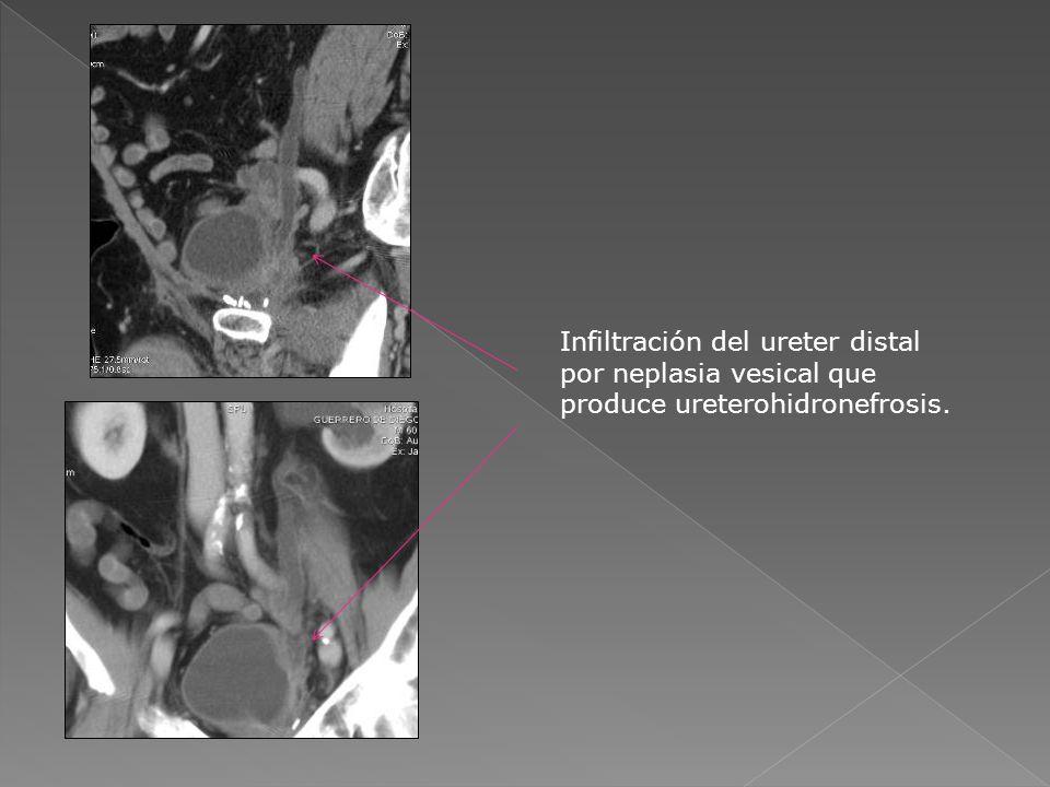 Infiltración del ureter distal por neplasia vesical que produce ureterohidronefrosis.