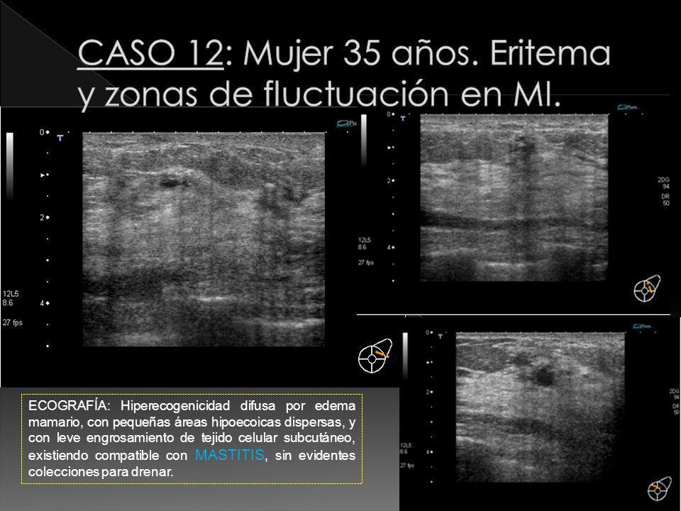 CASO 12: Mujer 35 años. Eritema y zonas de fluctuación en MI.