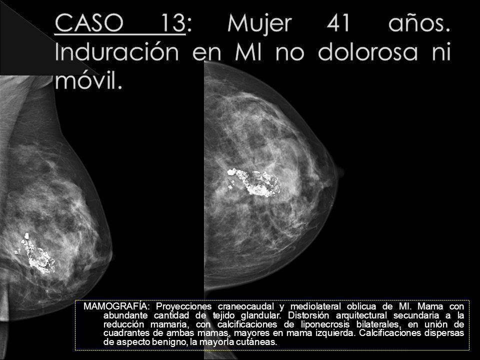 CASO 13: Mujer 41 años. Induración en MI no dolorosa ni móvil.
