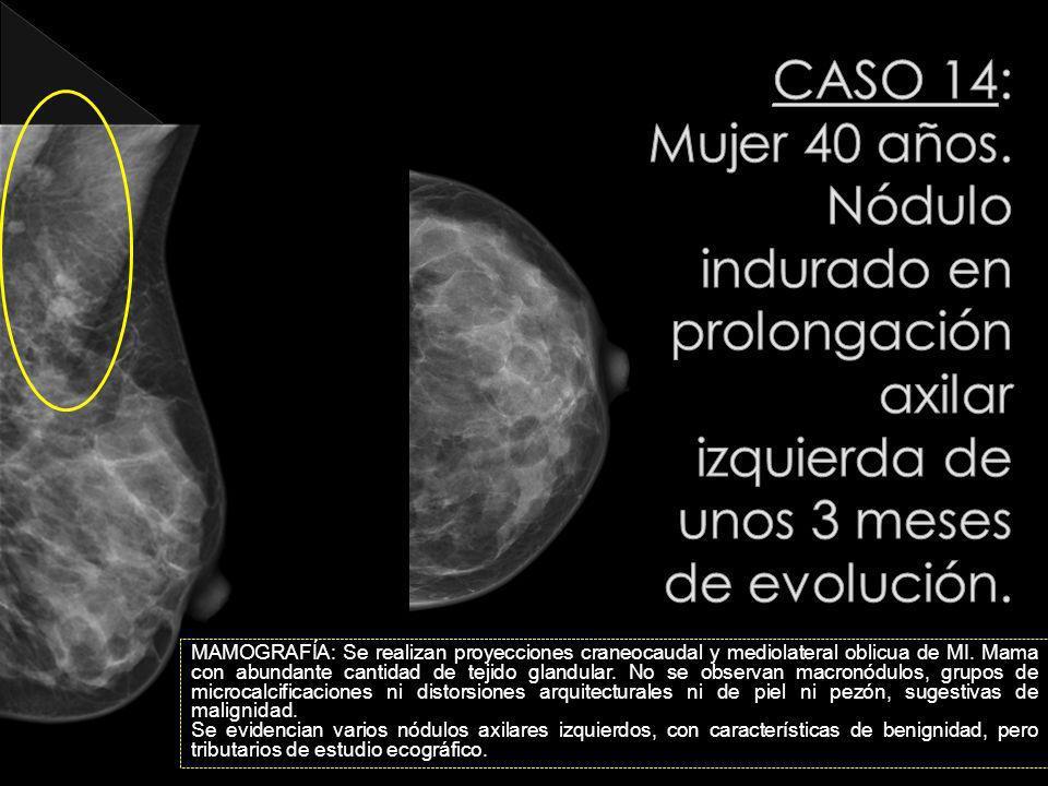 CASO 14: Mujer 40 años. Nódulo indurado en prolongación axilar izquierda de unos 3 meses de evolución.