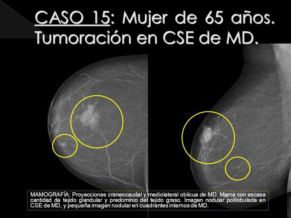 CASO 15: Mujer de 65 años. Tumoración en CSE de MD.