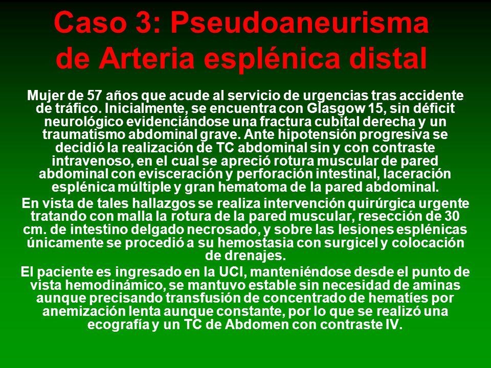 Caso 3: Pseudoaneurisma de Arteria esplénica distal