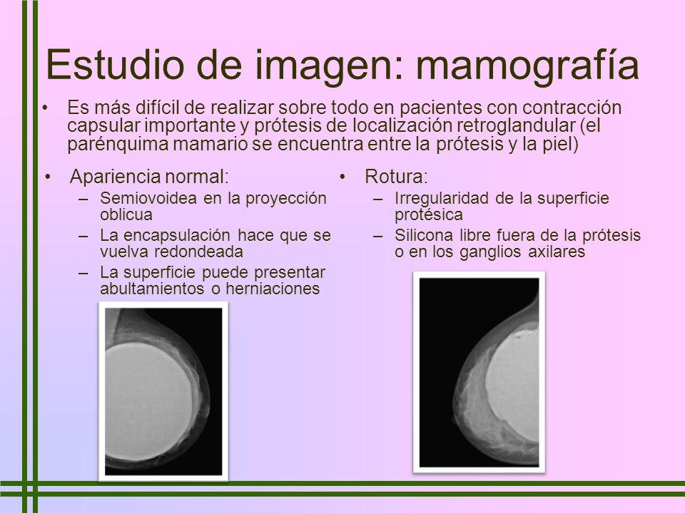 Estudio de imagen: mamografía