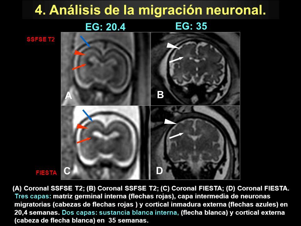 4. Análisis de la migración neuronal.