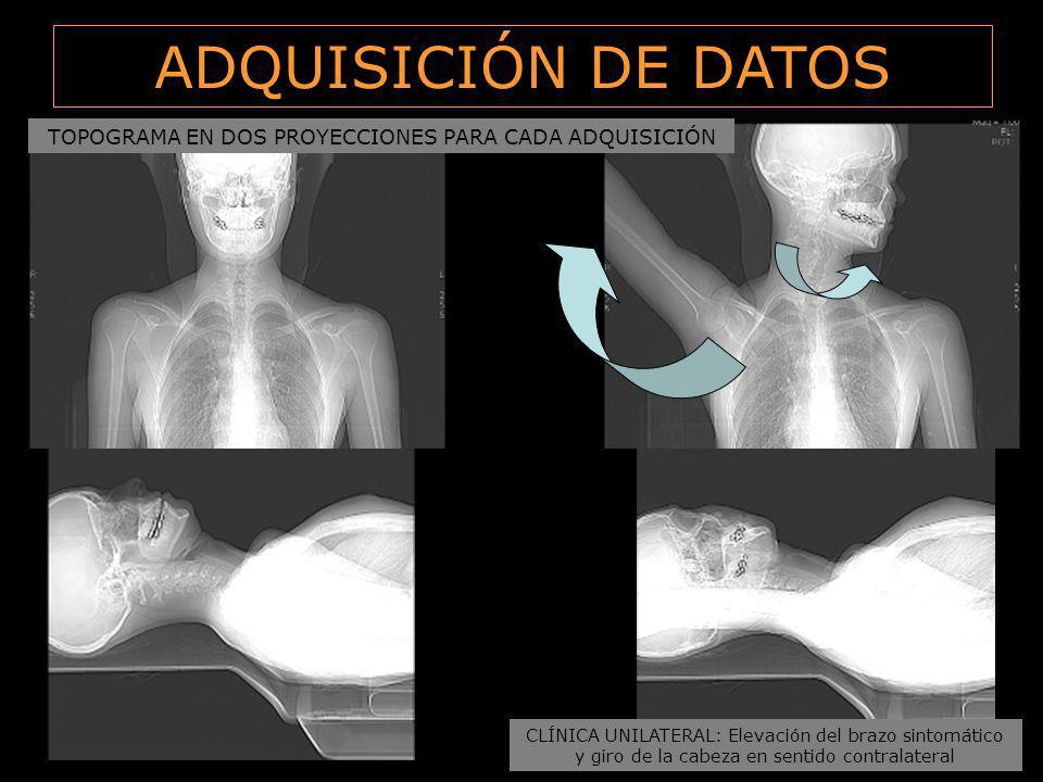 ADQUISICIÓN DE DATOS TOPOGRAMA EN DOS PROYECCIONES PARA CADA ADQUISICIÓN. CLÍNICA UNILATERAL: Elevación del brazo sintomático.