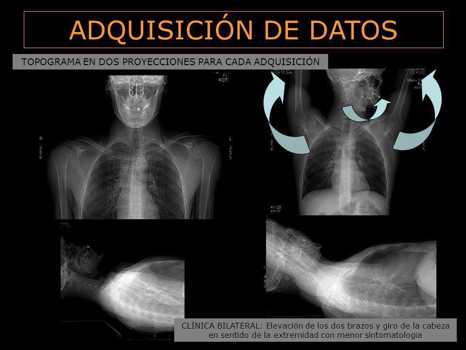 ADQUISICIÓN DE DATOS TOPOGRAMA EN DOS PROYECCIONES PARA CADA ADQUISICIÓN. CLÍNICA BILATERAL: Elevación de los dos brazos y giro de la cabeza.