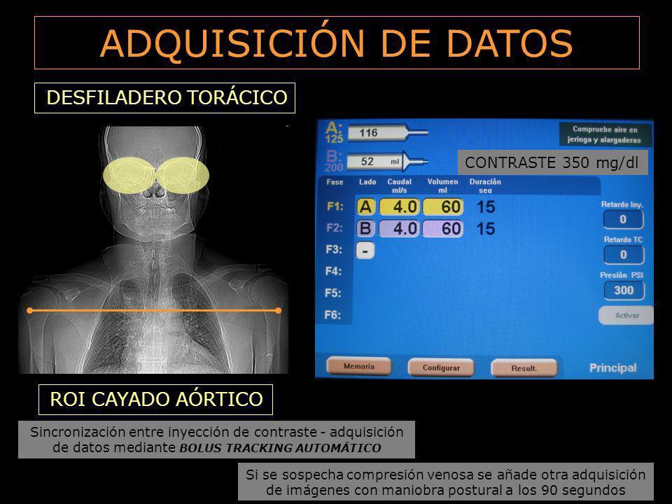 ADQUISICIÓN DE DATOS DESFILADERO TORÁCICO ROI CAYADO AÓRTICO