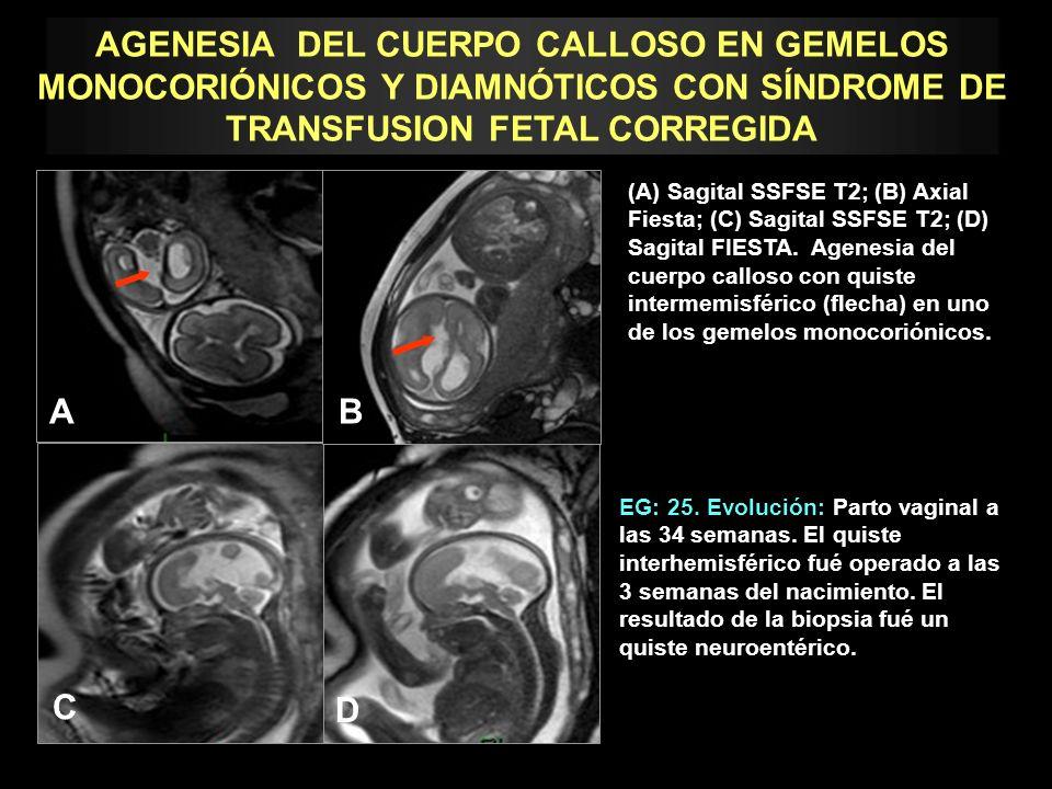 AGENESIA DEL CUERPO CALLOSO EN GEMELOS MONOCORIÓNICOS Y DIAMNÓTICOS CON SÍNDROME DE TRANSFUSION FETAL CORREGIDA