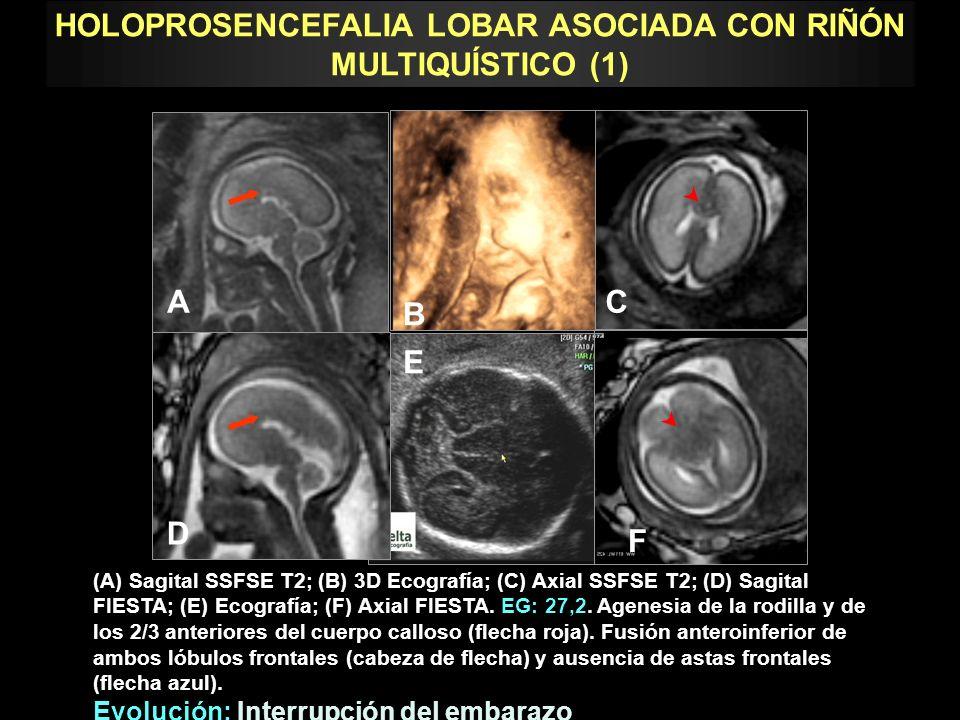 HOLOPROSENCEFALIA LOBAR ASOCIADA CON RIÑÓN MULTIQUÍSTICO (1)