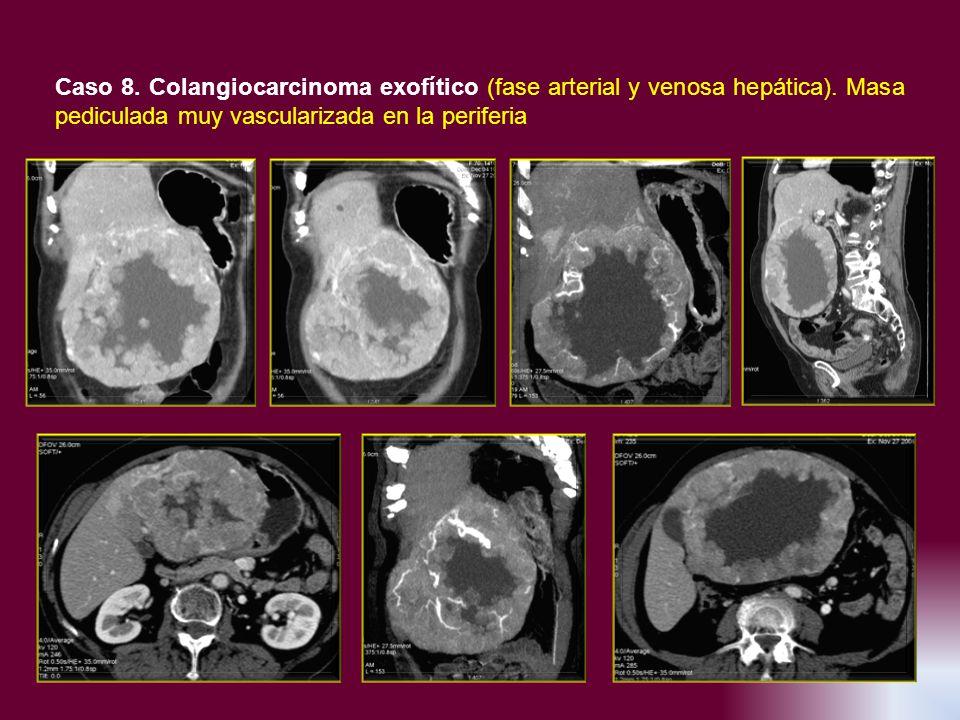 Caso 8. Colangiocarcinoma exofítico (fase arterial y venosa hepática)