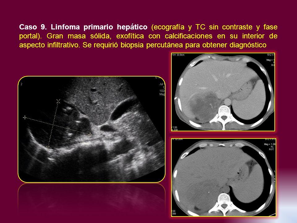 Caso 9. Linfoma primario hepático (ecografía y TC sin contraste y fase portal).