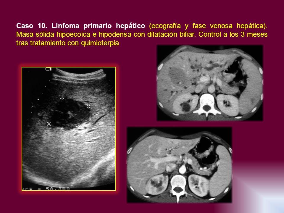 Caso 10. Linfoma primario hepático (ecografía y fase venosa hepática)