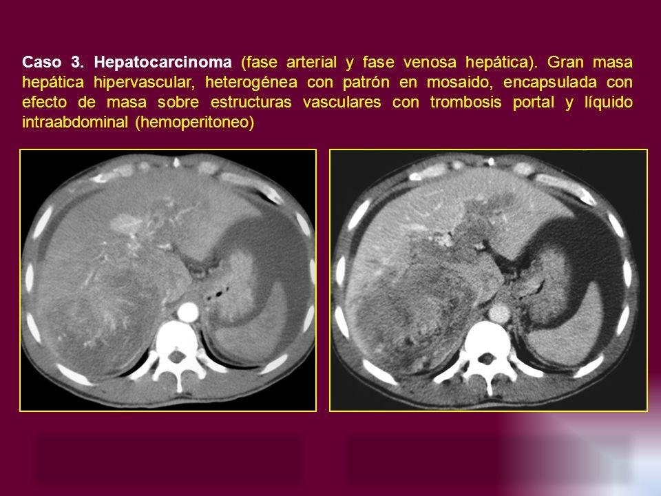 Caso 3. Hepatocarcinoma (fase arterial y fase venosa hepática)