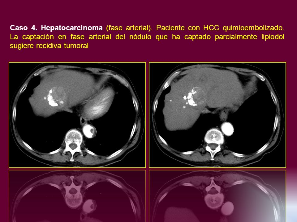 Caso 4. Hepatocarcinoma (fase arterial)