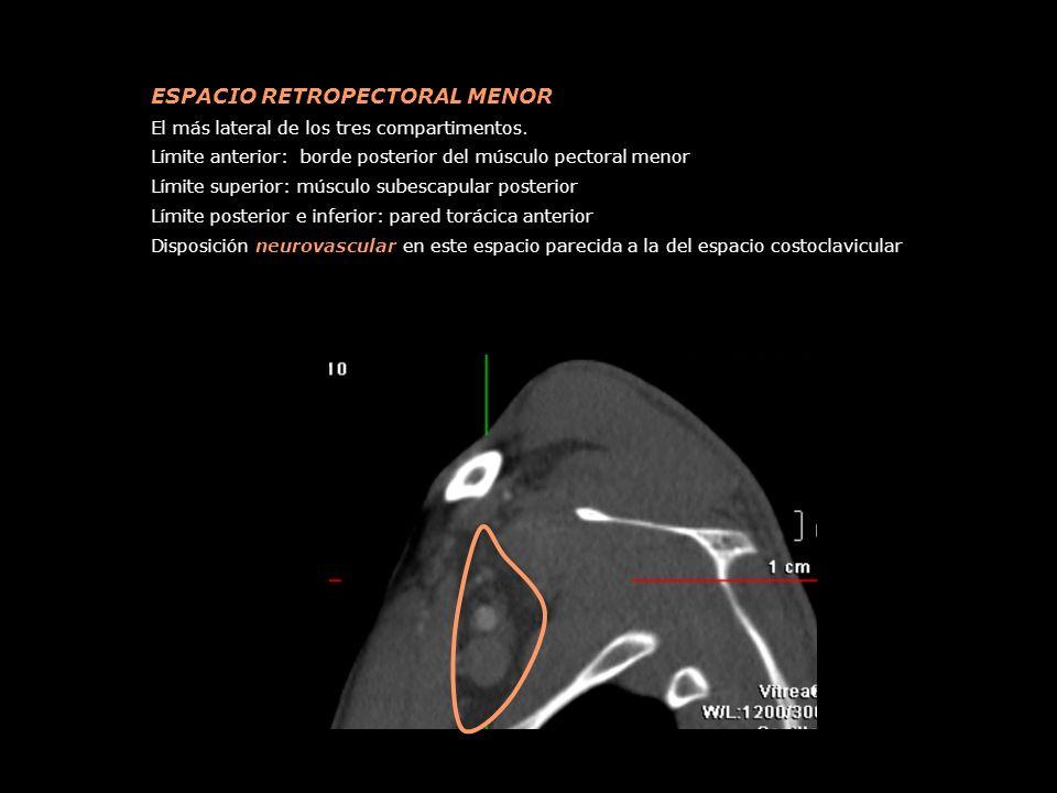 ESPACIO RETROPECTORAL MENOR