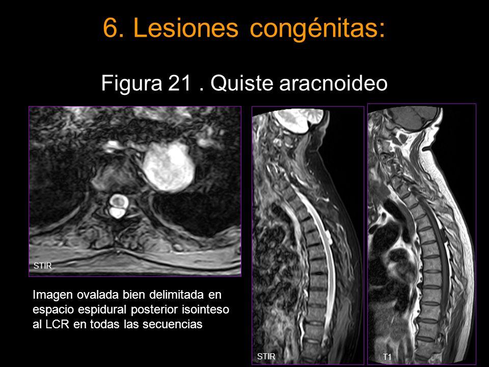 6. Lesiones congénitas: Figura 21 . Quiste aracnoideo