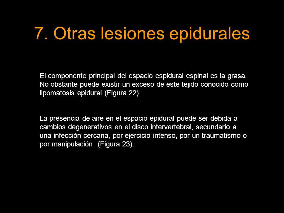 7. Otras lesiones epidurales